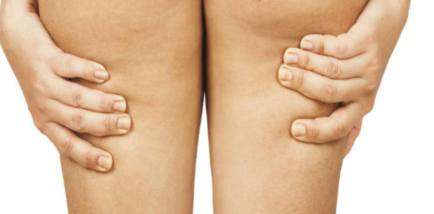 Reduce Cellulite and Body Fat