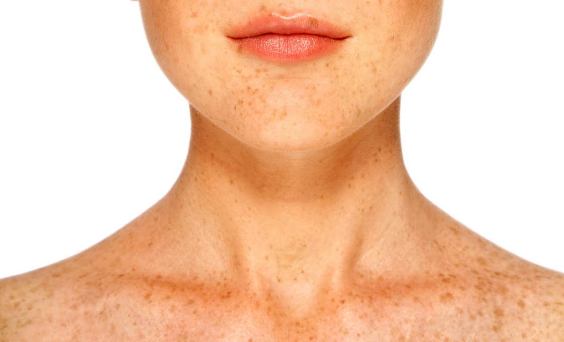Hydroquinone for Hyperpigmentation